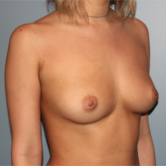 28 year old has breast augmentation with 295cc  Natrelle Breast Implants before 3467468
