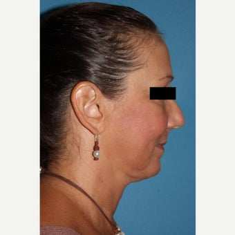 45-54 year old woman treated with Neck Lift after 2089855