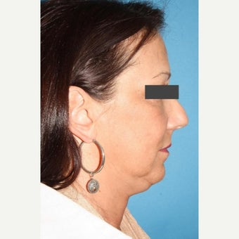 45-54 year old woman treated with Neck Lift before 2089855