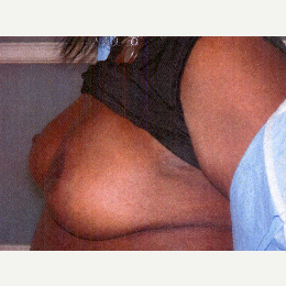 35-44 year old woman treated with Breast Reduction after 3032892