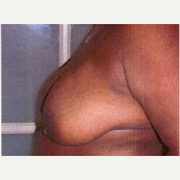 35-44 year old woman treated with Breast Reduction before 3032892