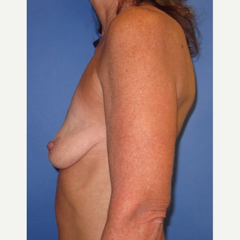 45-54 year old woman treated with Breast Lift with Implants (339cc) before 3760009