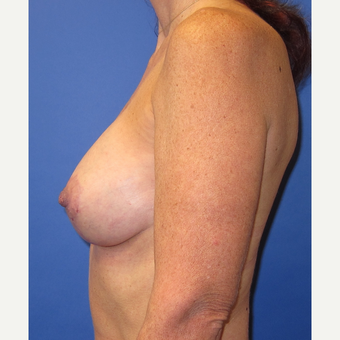 45-54 year old woman treated with Breast Lift with Implants (339cc) after 3760009