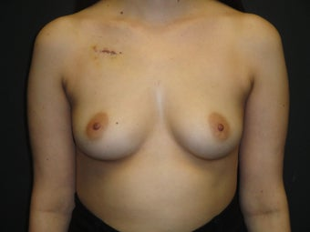 Breast reconstruction - Implants before 912589