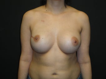 Breast reconstruction - Implants after 912589
