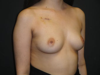 Breast reconstruction - Implants 912589
