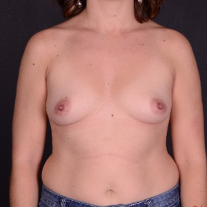 25-34 year old woman treated with Breast Augmentation before 3240155