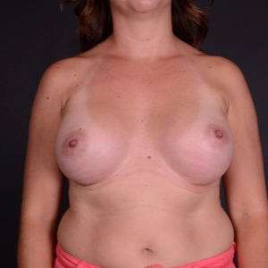 25-34 year old woman treated with Breast Augmentation after 3240155
