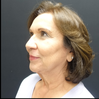 65-74 year old woman treated with Facelift before 3244852
