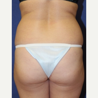 33 year old woman with Fat Transfer to bilateral buttocks before 3702126