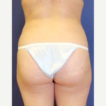 33 year old woman with Fat Transfer to bilateral buttocks after 3702126