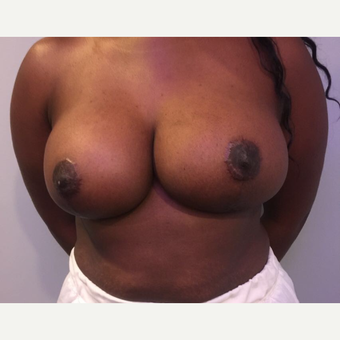 25-34 year old woman treated with Breast Reduction after 3749876