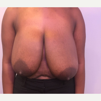 25-34 year old woman treated with Breast Reduction before 3749876