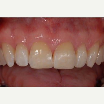 55-64 year old man treated with Dental Bonding for chipped front teeth after 2262084