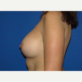 Breast Augmentation with 500 cc Silicone Implants after 3850413