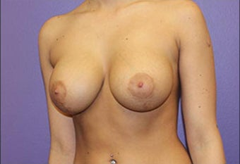 Breast Lift with implants after 1215854