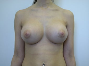 Breast Implants after 570611