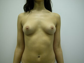 Breast Implants before 570611