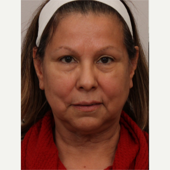 65-74 year old woman treated with Facelift before 3493645