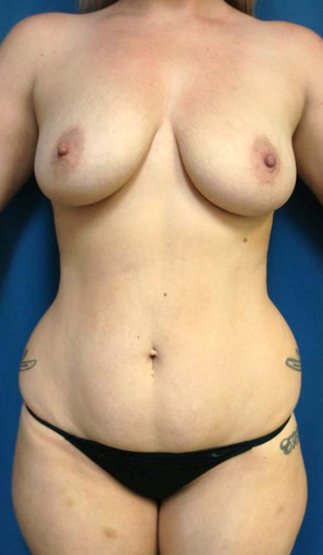 34 year old woman treated with Mommy Makeover