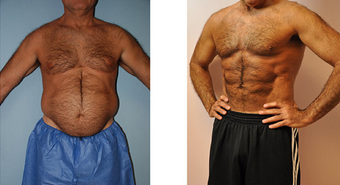 VASER Hi Def Liposuction (LipoSculpture) before 256266
