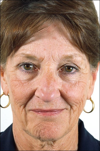 Rhinoplasty for a Mature Adult