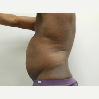 45-54 year old man treated with Vaser Liposuction before 2998690