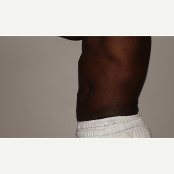 45-54 year old man treated with Vaser Liposuction after 2998690