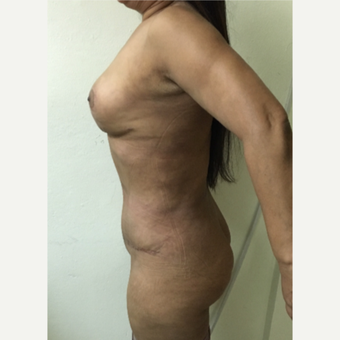 55-64 year old woman treated with Mommy Makeover after 2810201