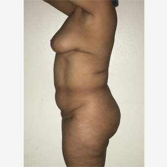 55-64 year old woman treated with Mommy Makeover before 2810201