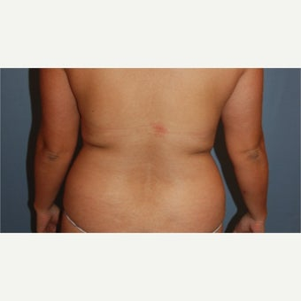 25-34 year old woman treated with Smart Lipo before 1748181