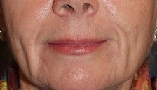 Soft Tissue Fillers Before & After Photos  before 969768