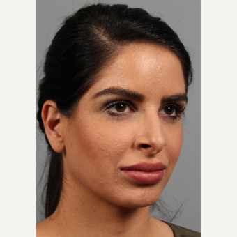 25-34 year old woman treated with Rhinoplasty before 3286656