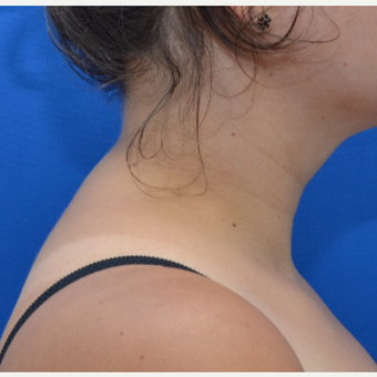 Buffalo Hump Reduction with Tumescent Liposuction after 3804188