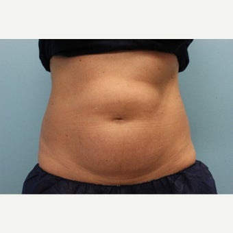 35-44 year old woman treated with CoolSculpting before 2083328