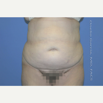 35-44 year old woman treated with Tummy Tuck + Vaser lipo before 2999001