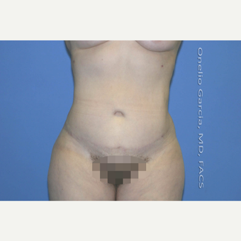 35-44 year old woman treated with Tummy Tuck + Vaser lipo after 2999001