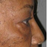 55-64 year old African American woman treated with Eye Bags Treatment before 1875951