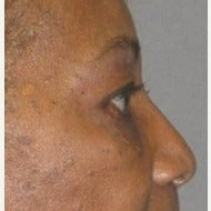 55-64 year old African American woman treated with Eye Bags Treatment after 1875951