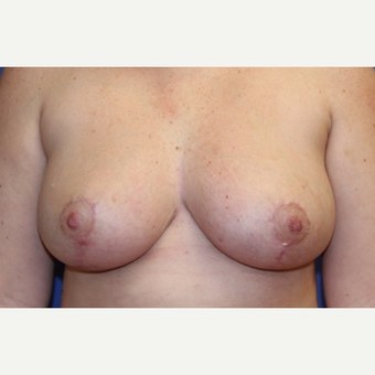 24 year old woman with a breast reduction after 3054683