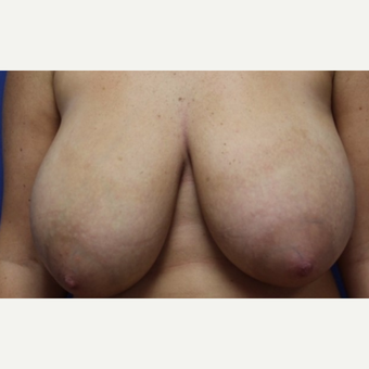 24 year old woman with a breast reduction before 3054683