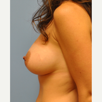 Breast Augmentation - C to D cup, 350 cc MPP silicone after 3422754