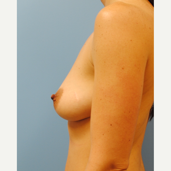 Breast Augmentation - C to D cup, 350 cc MPP silicone before 3422754