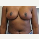 25-34 year old woman treated with Breast Reduction after 3093323