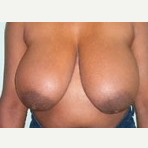25-34 year old woman treated with Breast Reduction before 3093323