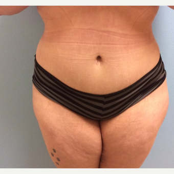 35-44 year old woman treated with Tummy Tuck after 3726078