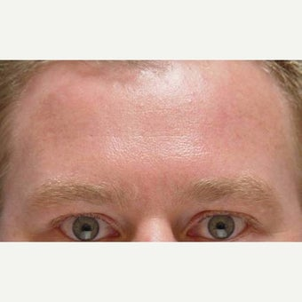 25-34 year old man treated with Botox in the forehead