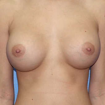 25-34 year old woman treated with Breast Augmentation after 3320772