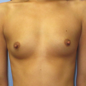 25-34 year old woman treated with Breast Augmentation before 3320772
