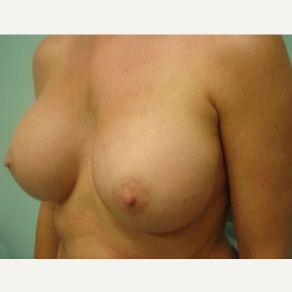 35-44 year old woman treated with Breast Augmentation after 3167935